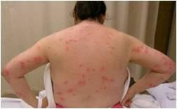 Bed Bug Bites